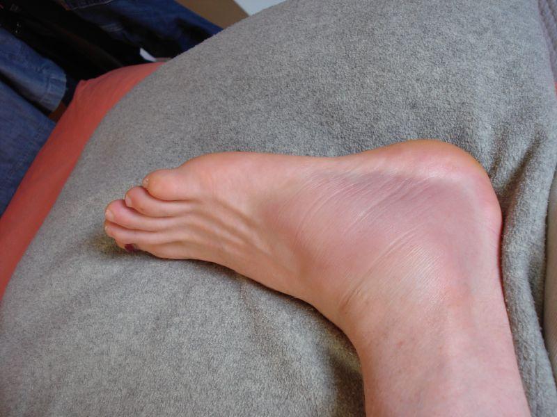 Caminar izquierdo duele el tobillo al